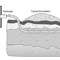 Schematic image of the process of a microdialysis measurement. The microdialysis-membranes are pushed into the skin and rinsed with perfusates. Penetrating topically applied substances can be taken up by the perfusate and collected for further analysis.